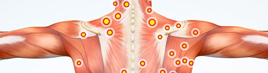 Diagram of Myofascial Trigger Points