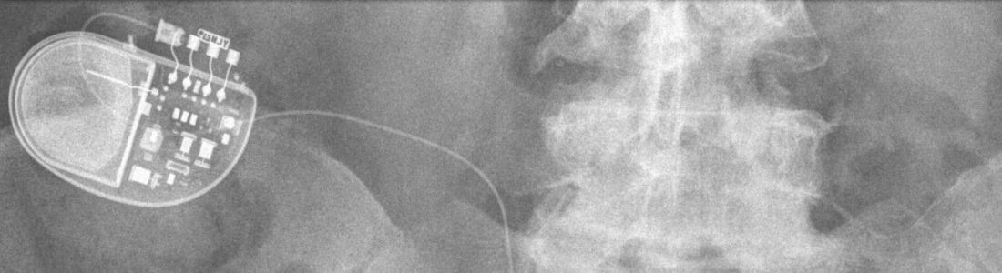 X-ray of SCS